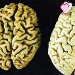 دراسة يابانية حديثة وجود صلة بين ارتفاع الكولسترول والإصابة بالزهايمر