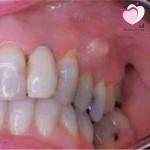 خراج الاسنان