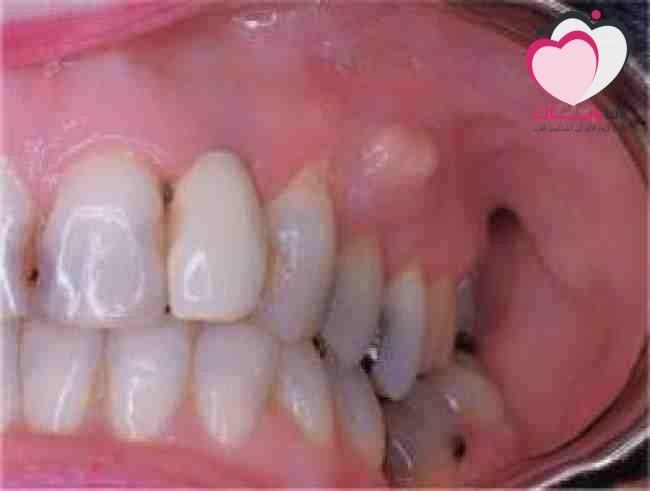 خراج-الاسنان